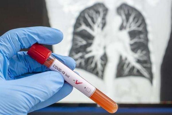 Очередной рекорд заражения коронавирусом в Украине, более 1700 случаев